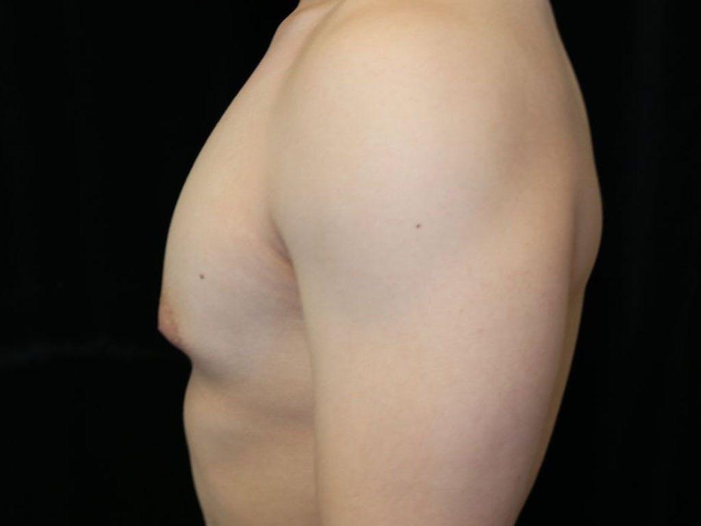 Gynecomastia Gallery - Patient 39353067 - Image 5