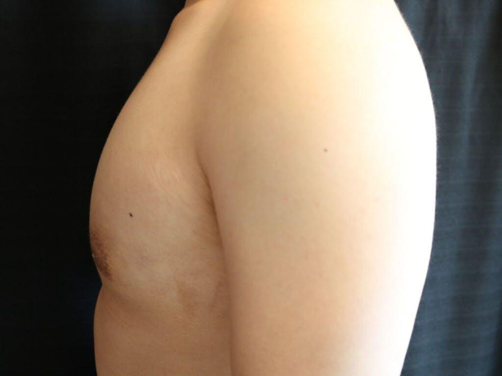 Gynecomastia Gallery - Patient 39353067 - Image 6