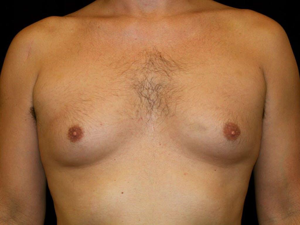 Gynecomastia Gallery - Patient 39353070 - Image 1