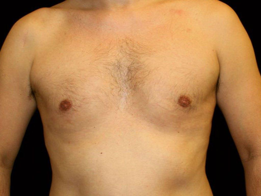 Gynecomastia Gallery - Patient 39353070 - Image 2