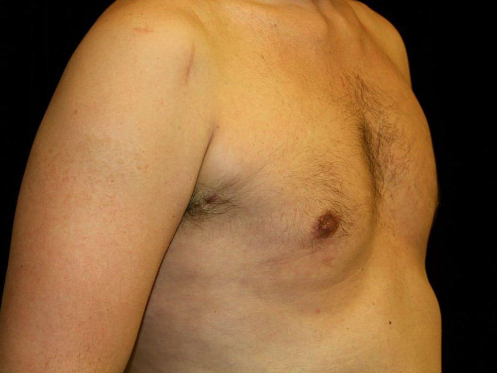 Gynecomastia Gallery - Patient 39353070 - Image 4
