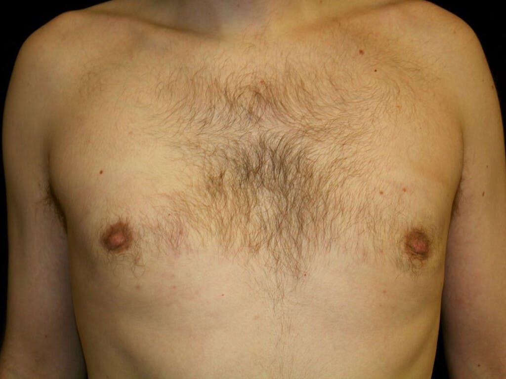 Gynecomastia Gallery - Patient 39353078 - Image 2