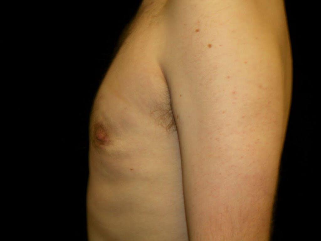 Gynecomastia Gallery - Patient 39353078 - Image 4