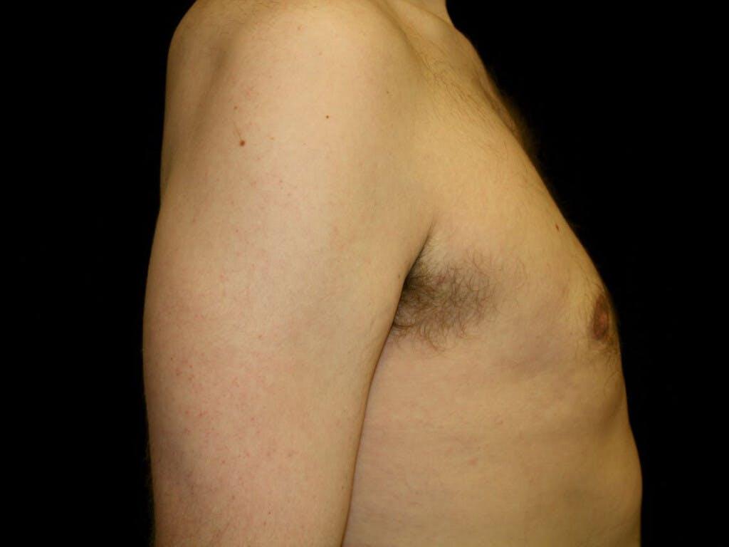Gynecomastia Gallery - Patient 39353078 - Image 6