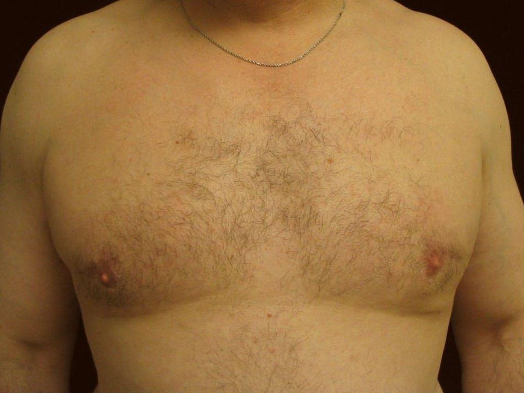 Gynecomastia Gallery - Patient 39353093 - Image 2