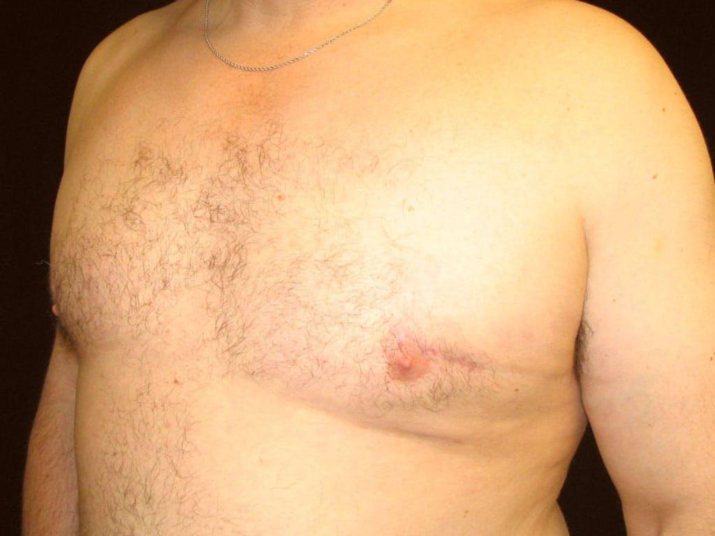 Gynecomastia Gallery - Patient 39353093 - Image 4