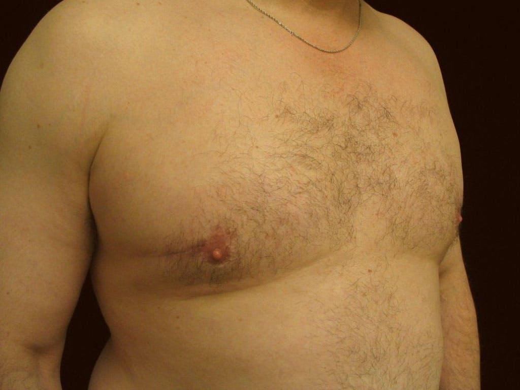 Gynecomastia Gallery - Patient 39353093 - Image 6