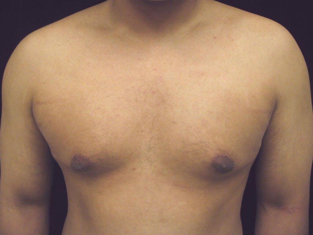 Gynecomastia Gallery - Patient 39353099 - Image 1