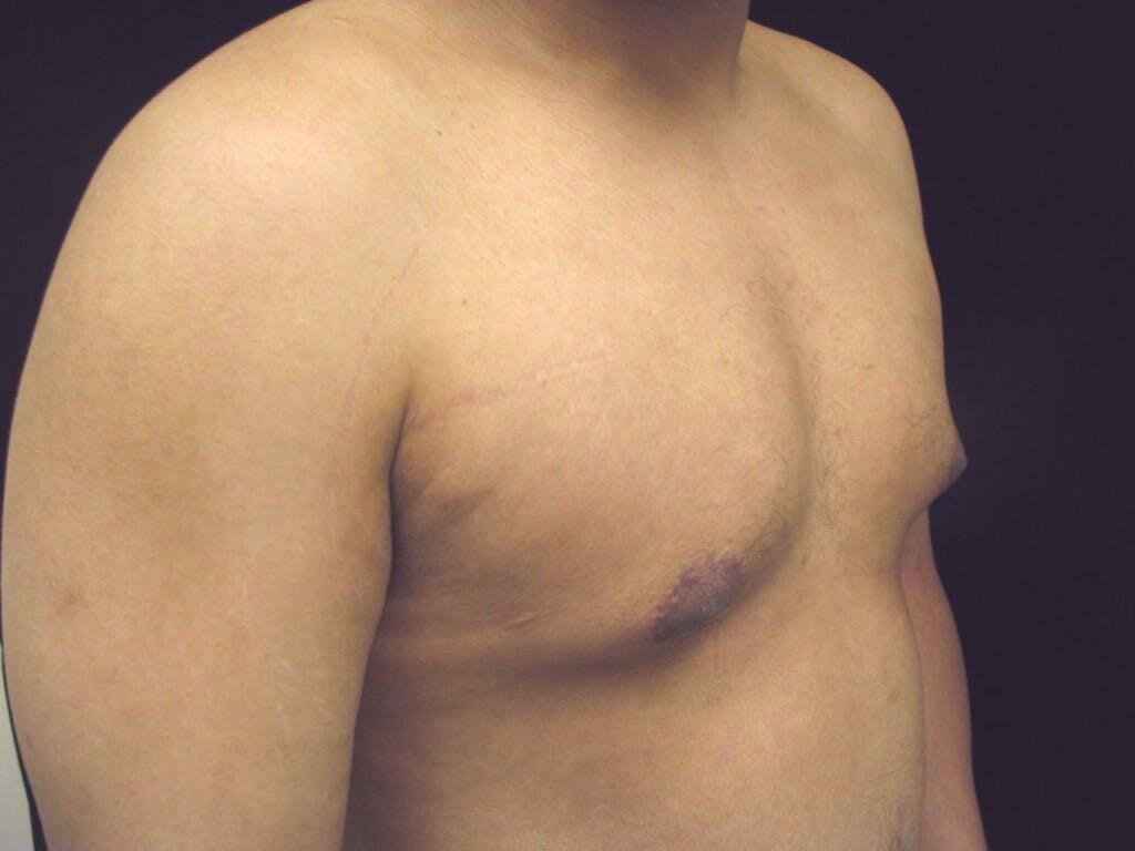 Gynecomastia Gallery - Patient 39353099 - Image 5