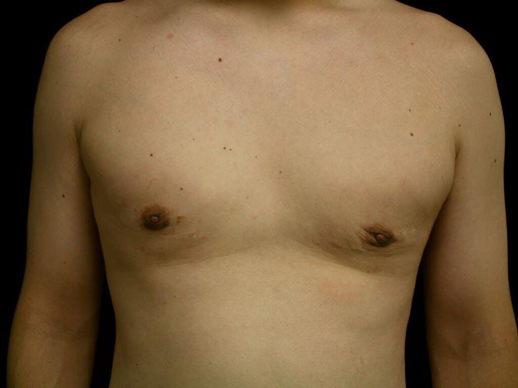 Gynecomastia Gallery - Patient 39353112 - Image 2