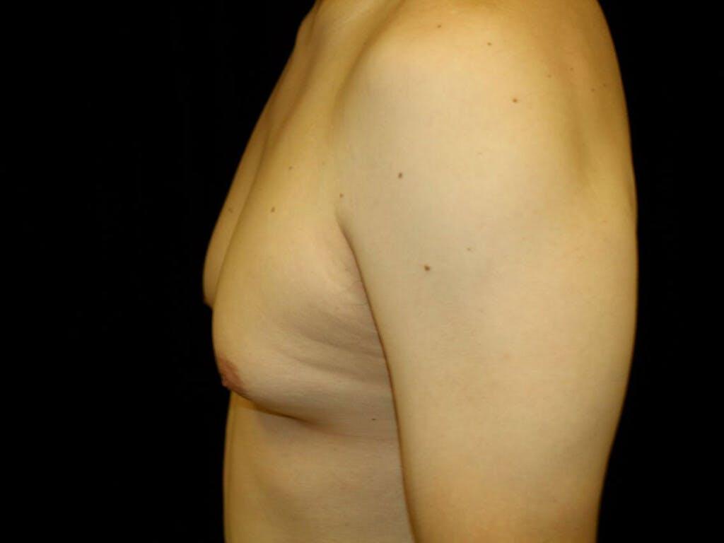 Gynecomastia Gallery - Patient 39353112 - Image 3