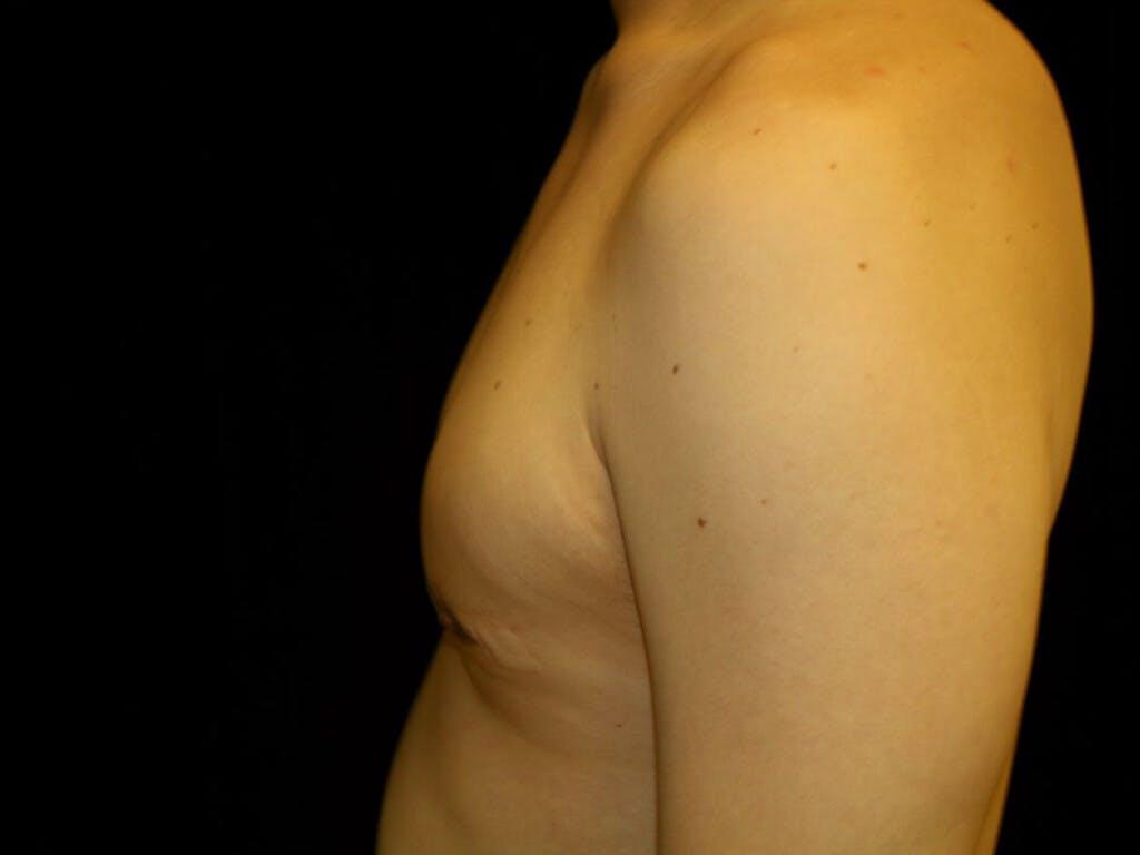 Gynecomastia Gallery - Patient 39353112 - Image 4