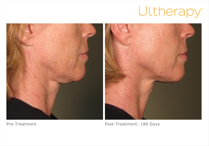 Ultherapy 019