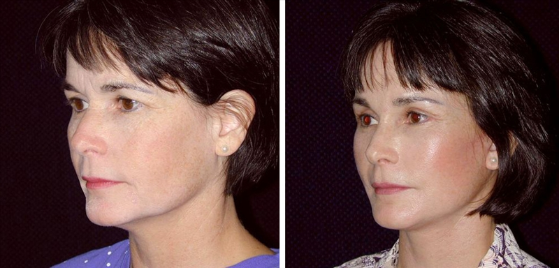 Before and After Facelift in San Francisco