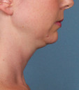 Before Kybella Injections in San Francisco