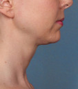 After Kybella treatment in San Francisco
