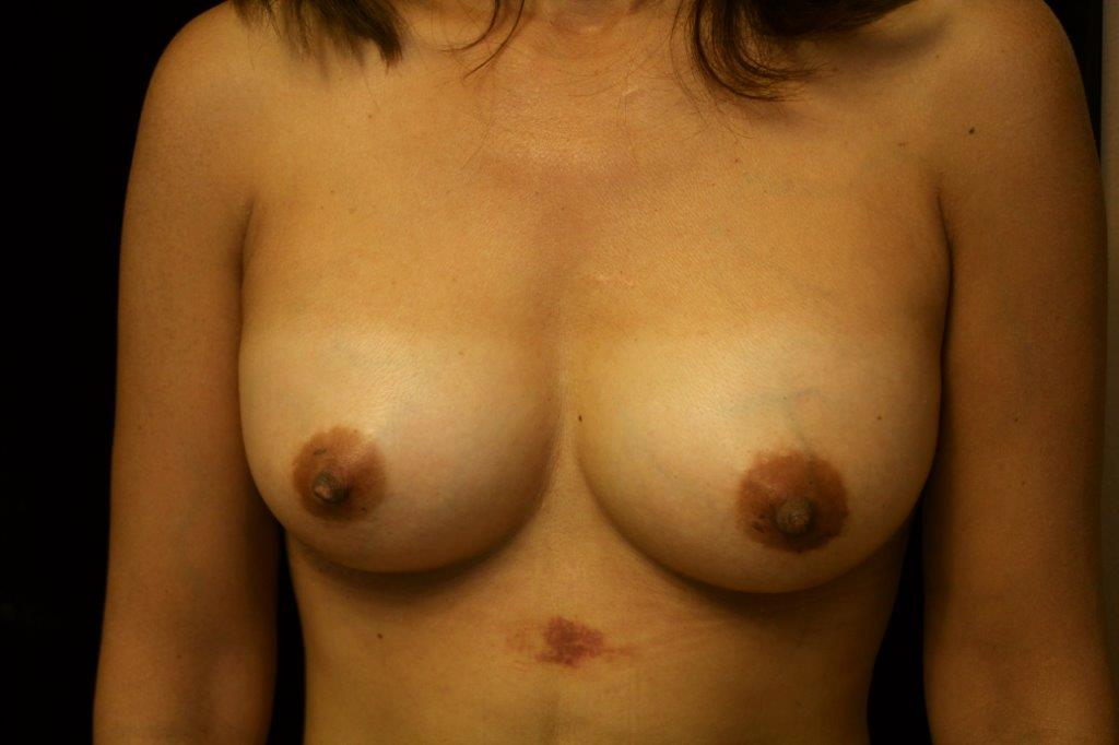 Breast Augmentation After Fat Transfer