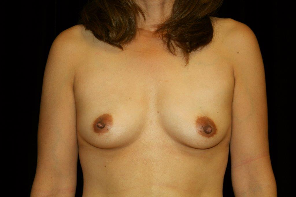Before Breast Augmentation by Fat Transfer