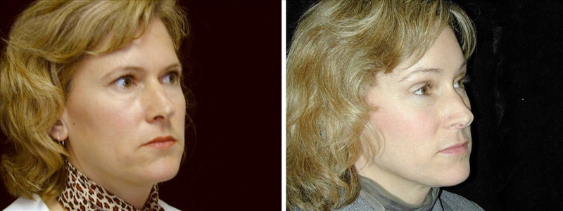 Brow Lift: Before and After: 41-year-old female - Rightt side oblique view
