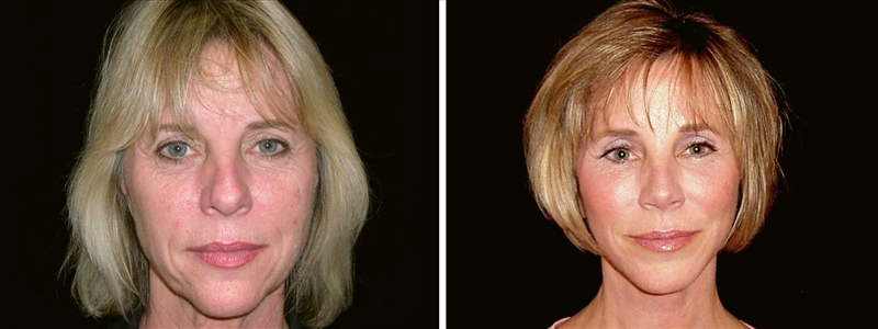 Before and After Facelift surgery in San Francisco