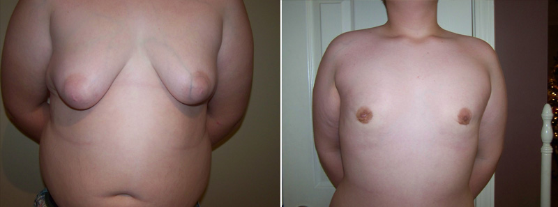 Gallery - FTM Surgery - Before and After Treatment - frontal view, male patient 2