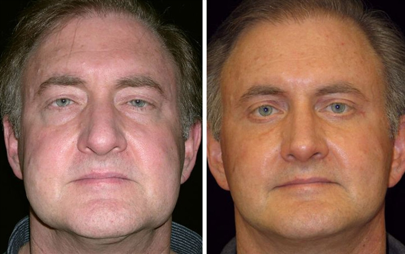 Male facelifts in San Francisco