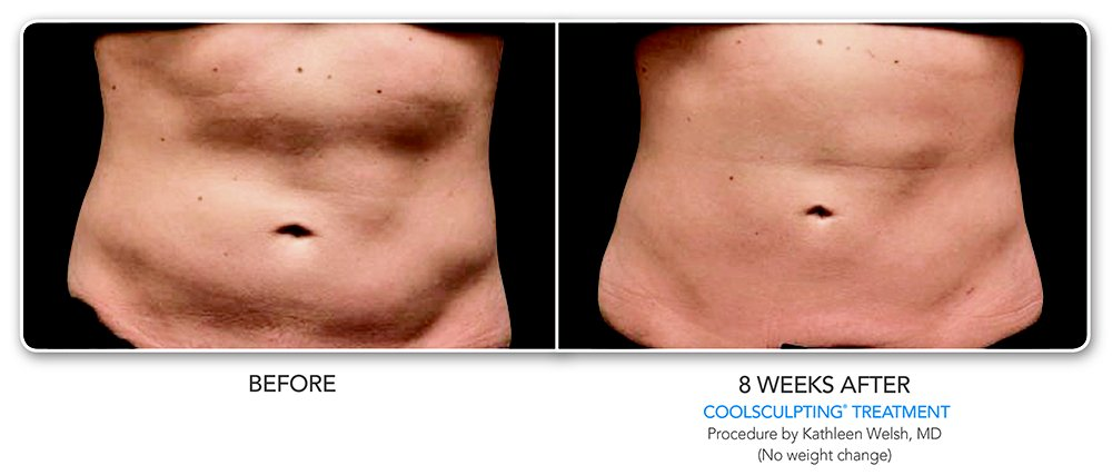 Before After CoolSculpting in San Francisco. 8 week's after. procedure by Kathleen Welsh
