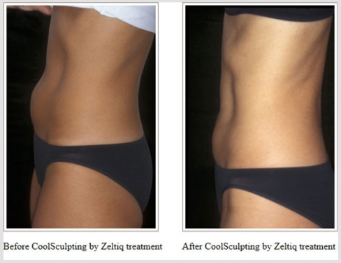 Before and After CoolSculpting Advantage