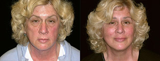 Facelift Before and After in San Francisco