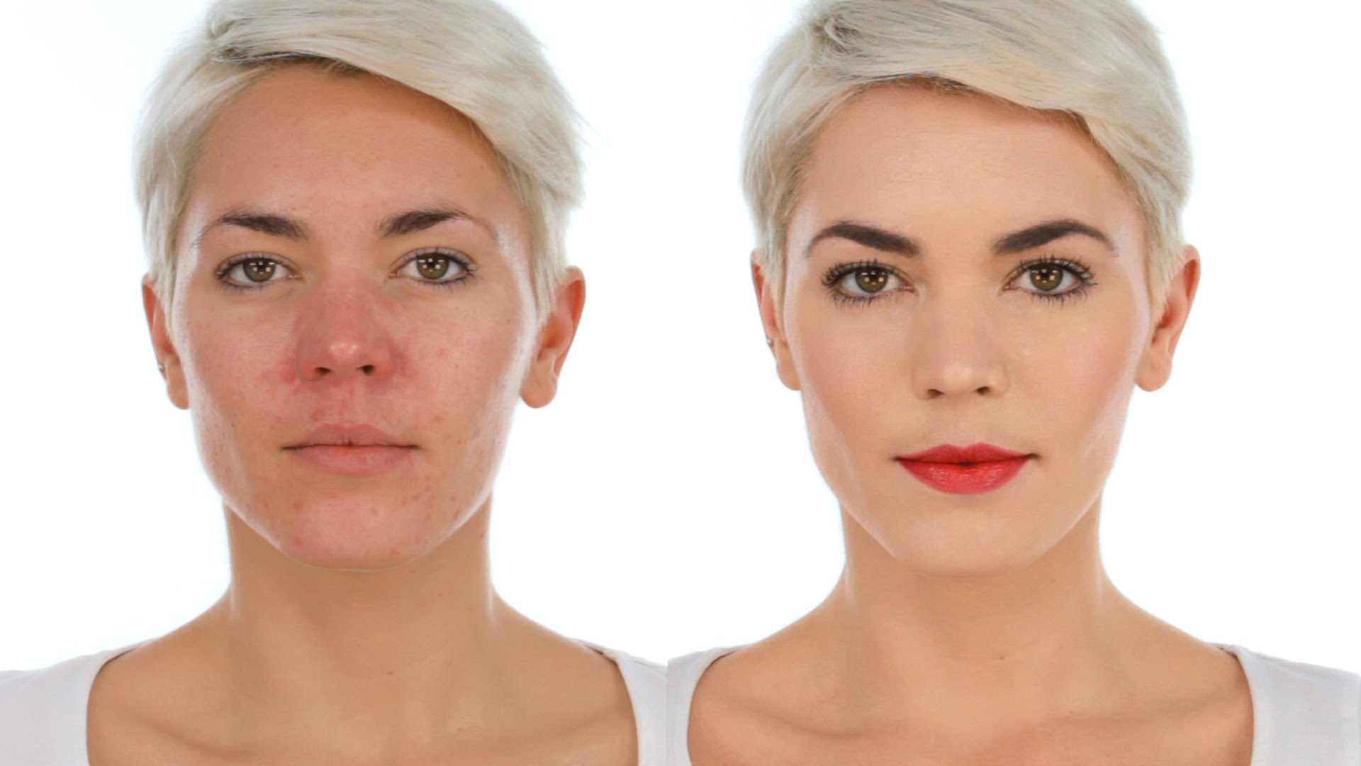 before and after rosacea treatment