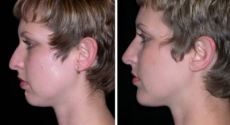 Chin implant and rhinoplasty in San Francisco