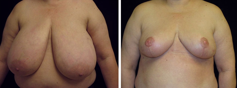 Dr. Miguel Delgado, breast reduction