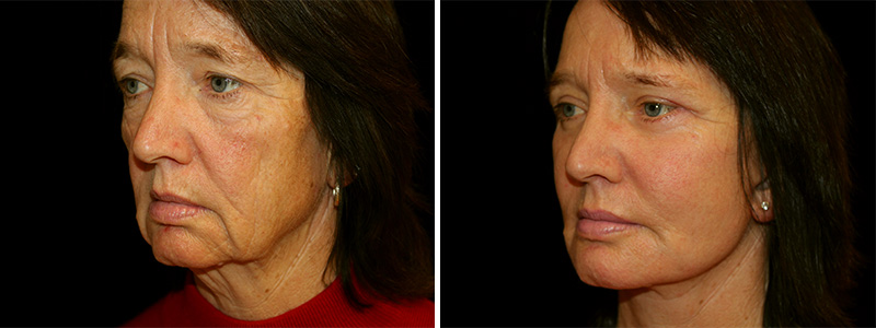 Face and Neck Lift in San Francisco