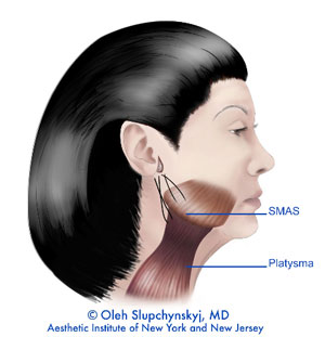 SMAS muscle for Neck Lift