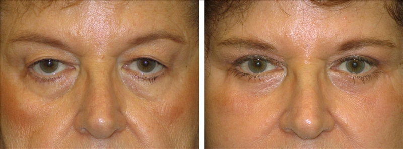 Before and After Blepharoplasty removes tear troughs
