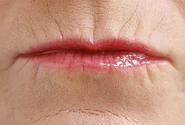 Lip lines can be treated
