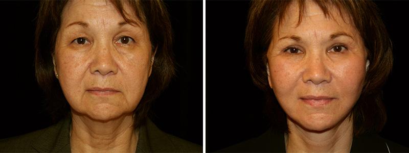 Facelift surgery in San Francisco
