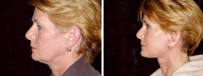 Aging face before and after Facelift San Francisco