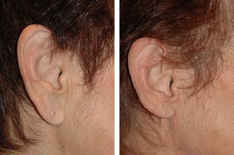 earlobe reduction in San Francisco