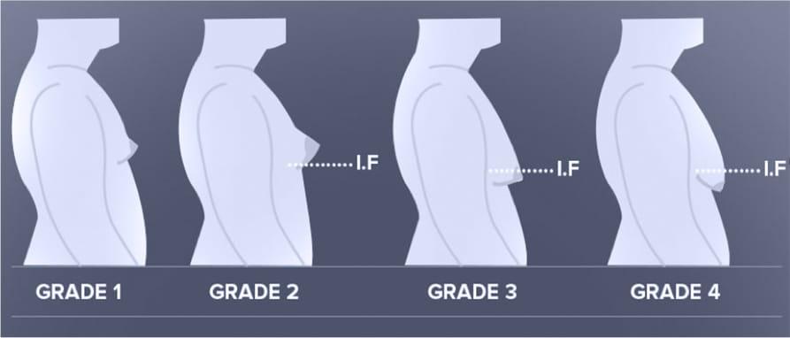 Gynecomastia grades diagram