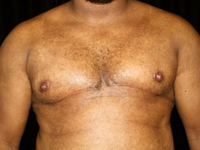 Male breast reduction results in San Francisco with Dr. Delgado