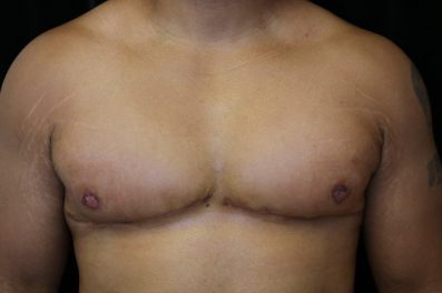After male breast reduction in San Francisco with Dr. Delgado