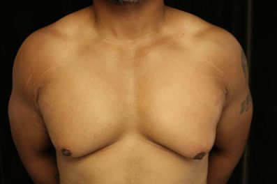 Before male breast reduction in San Francisco with Dr. Delgado
