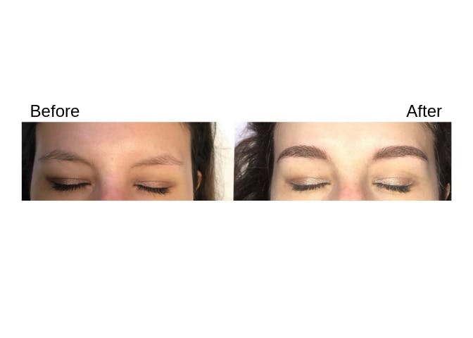 Procedures Gallery - Patient 41627719 - Image 1