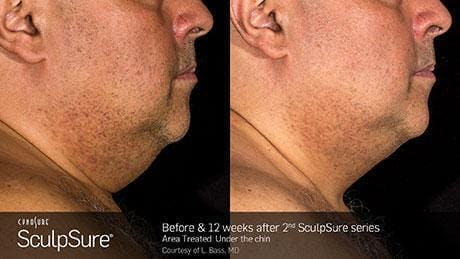 Non-Invasive Body Contouring Gallery - Patient 41897244 - Image 1