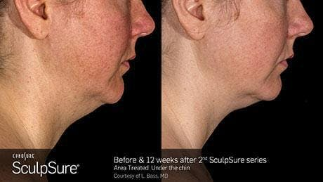 Non-Invasive Body Contouring Gallery - Patient 41897245 - Image 1