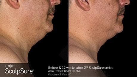 Non-Invasive Body Contouring Gallery - Patient 41897246 - Image 1