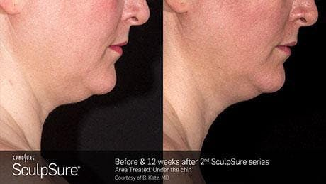 Non-Invasive Body Contouring Gallery - Patient 41897247 - Image 1
