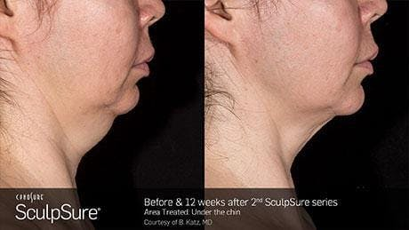 Non-Invasive Body Contouring Gallery - Patient 41897248 - Image 1