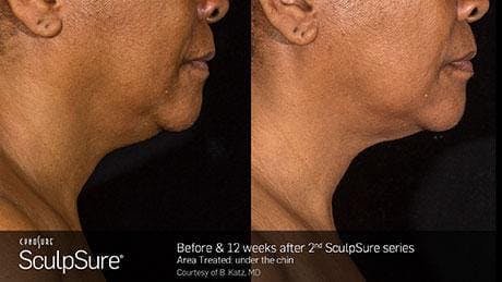 Non-Invasive Body Contouring Gallery - Patient 41897249 - Image 1